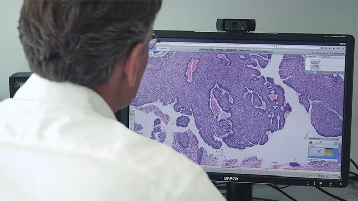 Philips supports digital transformation of pathology worldwide